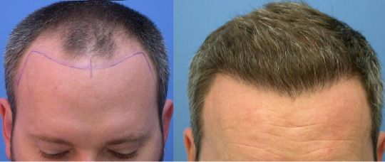 San Francisco hair transplant cost and clinic